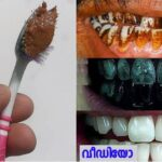 How to Clean Stained Teeth