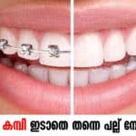How to Straighten Your Teeth Without Braces